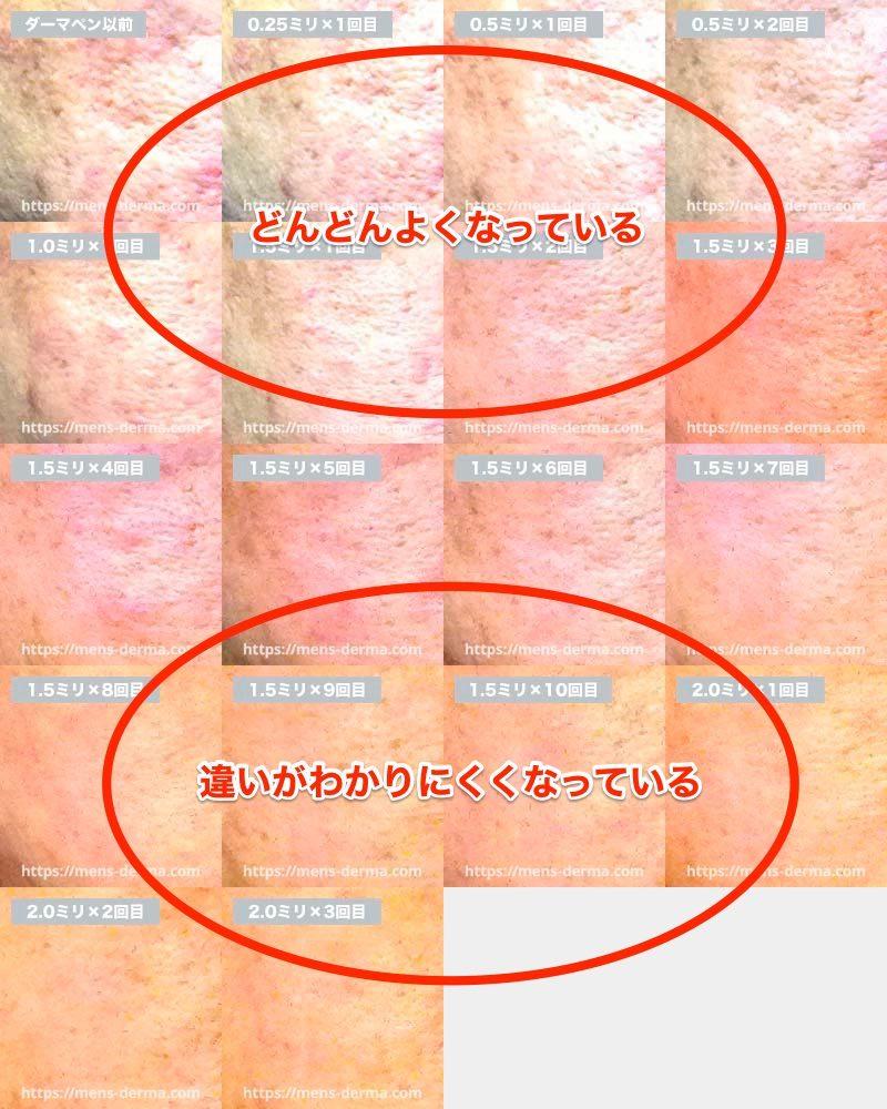 ダーマペン17回分のビフォーアフター画像を解説