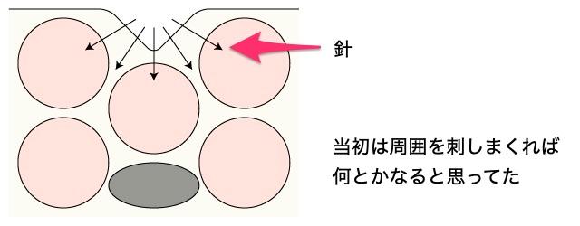 凹みの解説2